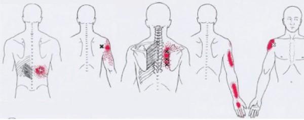 Тригерни точки- центрове на напрежение в тялото