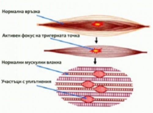 Тригерните точки са зони на мускулите, които са с повишена чувствителност