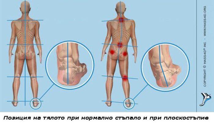 Графика 2. Позиция на тялото при нормално стъпало и плоскостъпие