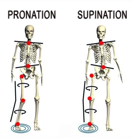 Прекомерната пронация и супиниране нарушават естественото изравняване на тялото и причиняват прекомерно въздействие, когато стъпалото удари земята.