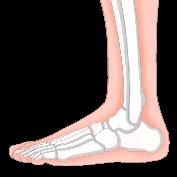 Нелекуваното плоскостъпие може да доведе дори до болки в шията.